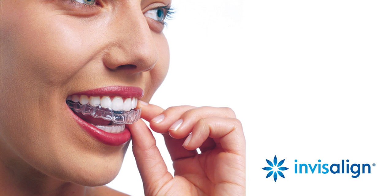 Invisible braces making your smile visible!